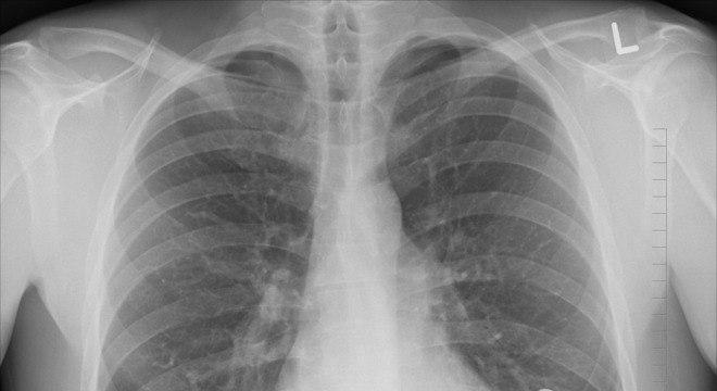 Raio-x torácico é um dos exames para detectar doença