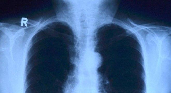 Exame de raio X é feito avaliar suspeita da doença, confirmada por biópsia
