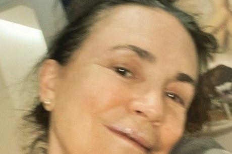 Atriz postou foto após cirurgia nos dentes