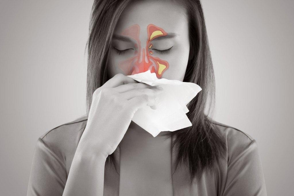 Remédio para Sinusite Dores