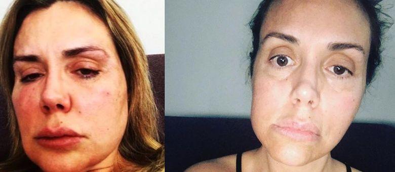 Renata Banhara relembrou doença em post no Instagram