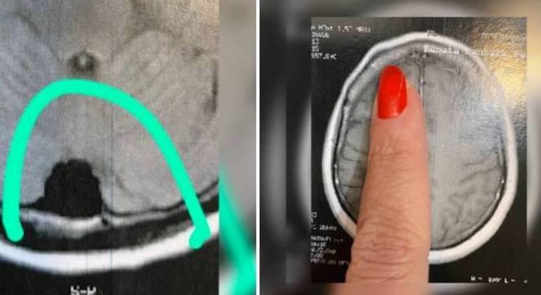 À esq., Renata mostra tumor de 2 cm; à dir., o estufamento ósseo localizado na testa
