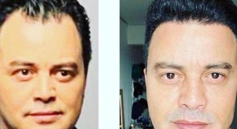 O antes e depois de Renner