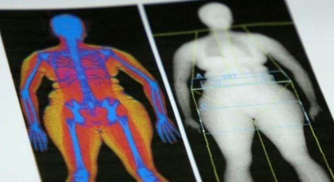 Jornalista da BBC diz que se considera uma pessoa saudável por fora, mas não sabe o que está sob sua pele