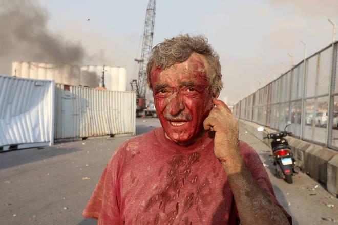 Um ferido, coberto de sangue