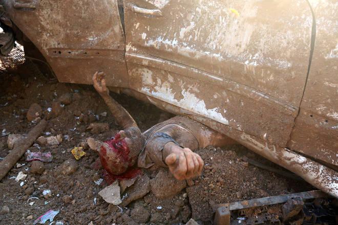 Um deles era um homem coberto de poeira e ensanguentado preso sob um carro