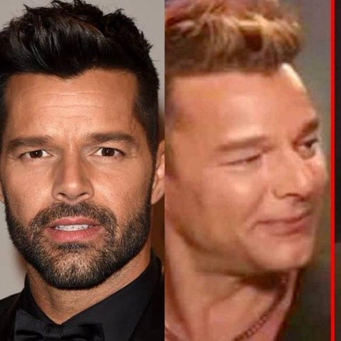 Ricky Martin, antes e depois