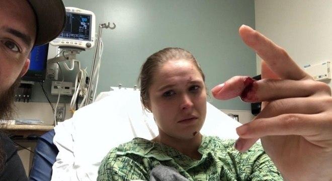 Ronda Rousey postou nas redes sociais o dedo fraturado