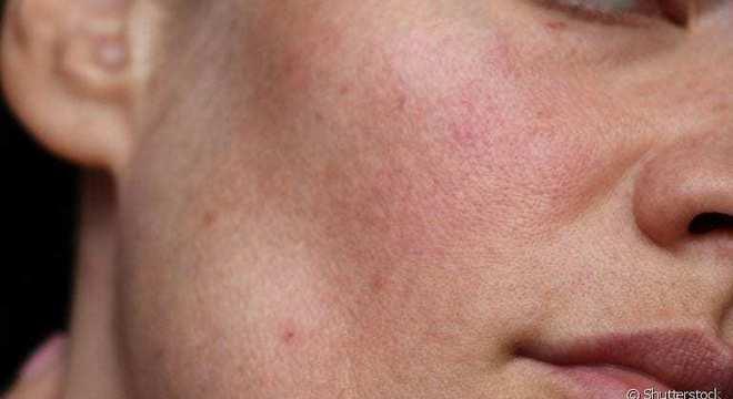 Rosácea – O que é, sintomas, causas, e tratamento