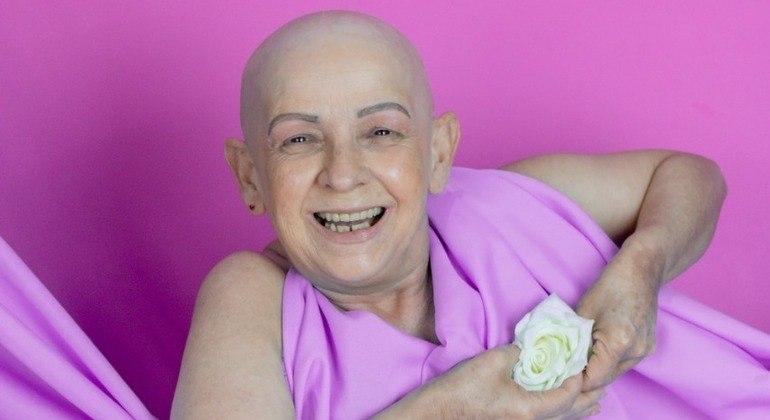 """A aposentada fez um lindo ensaio de fotos após se tornar uma """"careca assumida"""""""