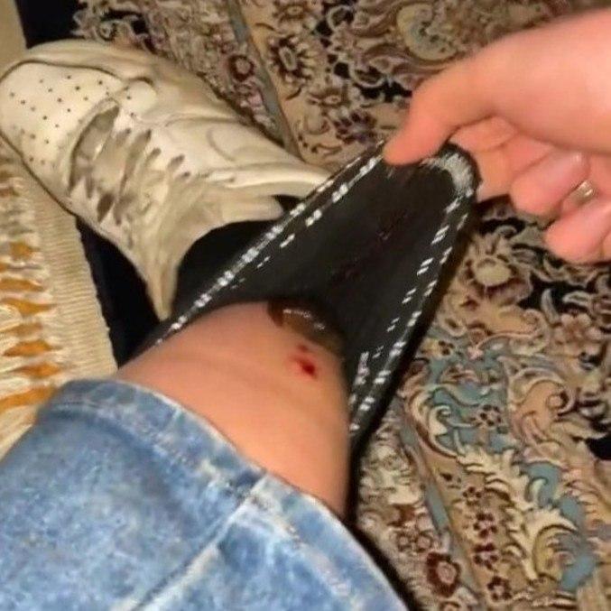 Por algum motivo, a sanguessuga estava solta na meia de Zoe