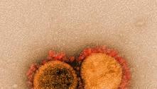 Coronavírus veio de laboratório, diz Partido Republicano dos EUA