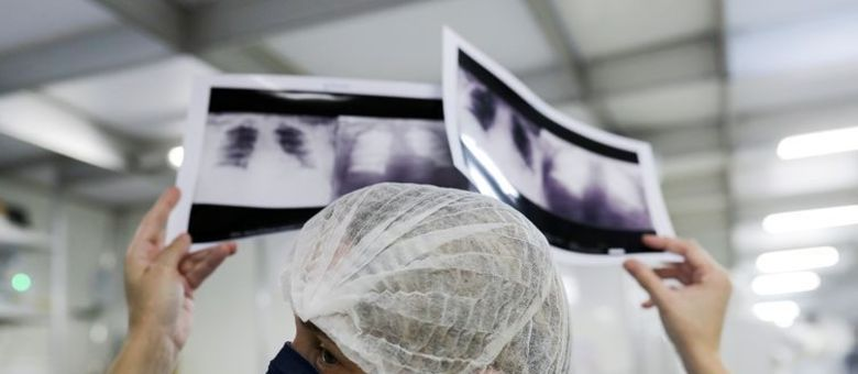 saúde, sus, radiografia