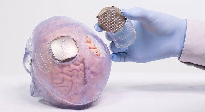 Sensores que são instalados no cérebro