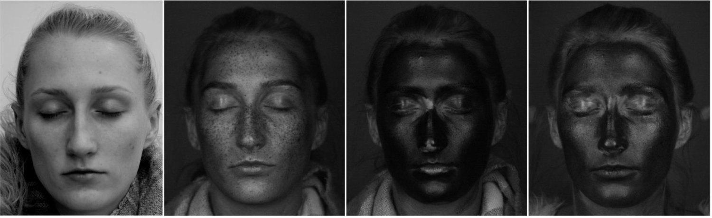 Da esq. para a dir.: rosto fotografado com câmera normal, com câmera UV; com filtro solar e com hidratante