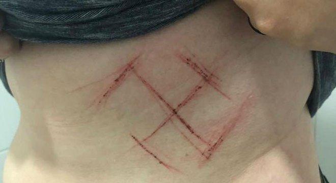 Símbolo foi marcado com um canivete na barriga da jovem Crédito: Reprodução Facebook / Divulgação / CP