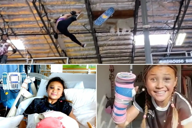 A skatista Sky Brown já está em casa, recuperada, ansiosa para voltar a andar de skate. A menina de 11 anos sofreu um grave acidente enquanto treinava na última segunda-feira (1). Por enquanto ela ainda não pode voltar a praticar o esporte. Ela é uma das grandes promessas da modalidade e defende o Reino Unido