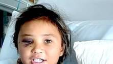 Skatista de 11 anos sofre grave acidente durante manobra; assista