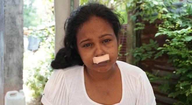 Nirasha Fernando perdeu a filha e vai ficar com uma cicatriz permanente no lábio superior