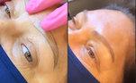 A mãe de Rafael Cabral fez diversos procedimentos, como micropigmentação nas sobrancelhas...