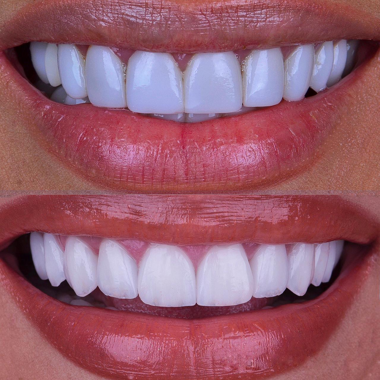 Sorriso de Simaria com facetas antigas brancas (acima) e atual, com transparência