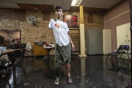 Daniel Souza não queria mais esconder a prótese