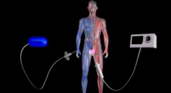 Medicamento aplicado pela veia é ativado por fibras óticas na próstata