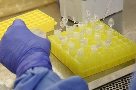 Teste para detectar coronavírus