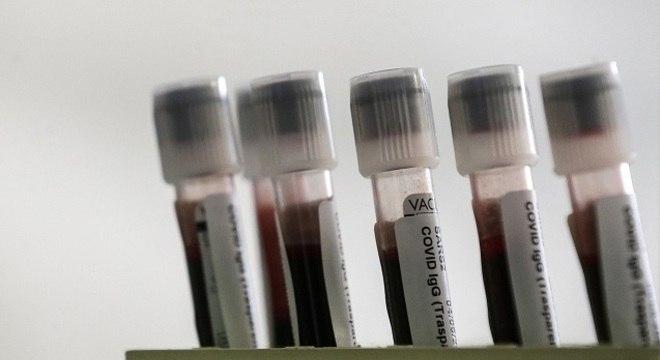Exame identifica anticorpos IgA, IgM e IgG em quem teve contato com o vírus