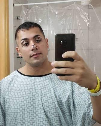 Em 2020, Tiago passou por vários procedimentos estéticos e, nas redes sociais, chegou a exibir o rosto marcado pré-cirurgia. Vale lembrar que em 2015 ele já tinha aplicado botox no lábio