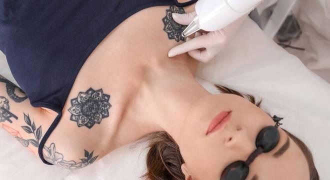Tire suas principais dúvidas sobre remoção de tatuagem