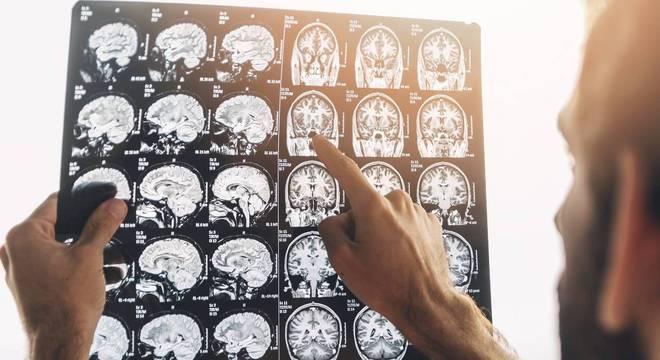 Com uso da inteligência artificial, diagnóstico por imagem se torna mais eficiente