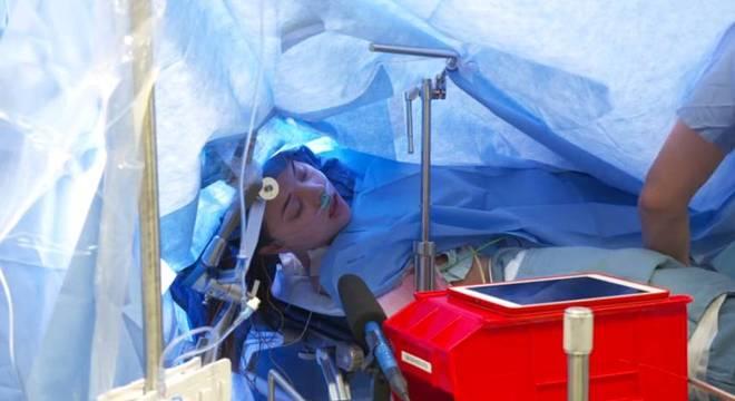 Médicos transmitem uma cirurgia cerebral ao vivo no Facebook