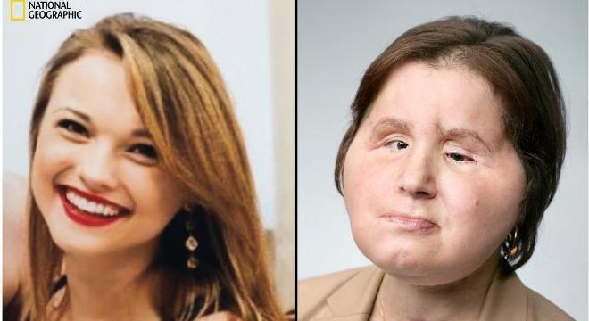 Katie aos 17 e aos 22 anos, um ano após o transplante de rosto