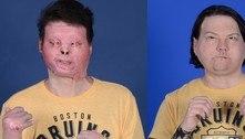 Primeiro transplante de rosto e mãos é realizado nos EUA