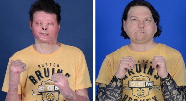 Foto mostra Joe DiMeo antes e depois do transplante
