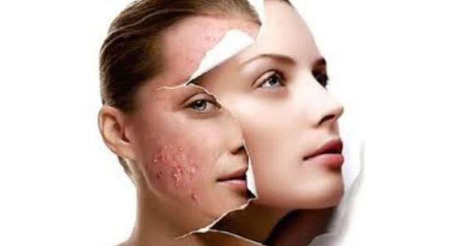 Tratamentos para acne - Tipos de acne e o que fazer em cada caso