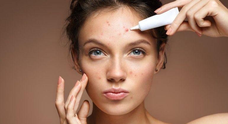 Tratamentos para espinha - saiba como evitar a acne