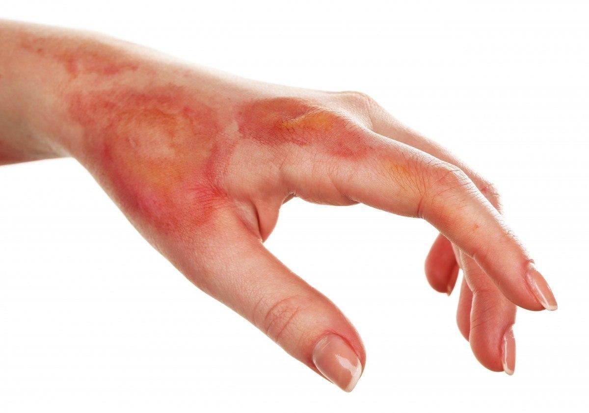 Pomada cicatrizante para queimadura de 2 grau
