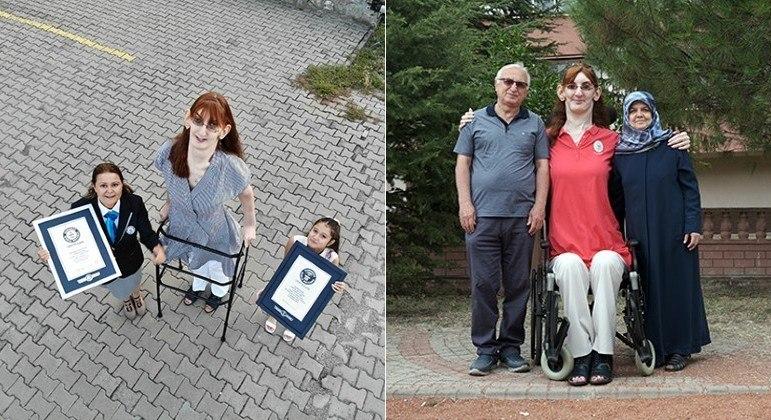 Turca com 2,15 metros foi reconhecida pelo Guinness como a mulher viva mais alta do mundo
