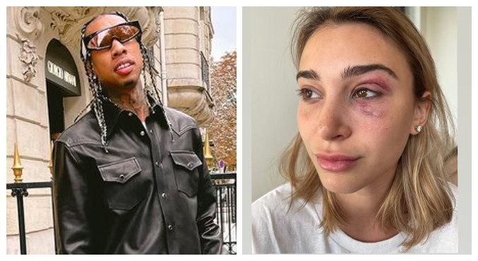 Ex-namorada de Tyga exibiu hematomas no olho