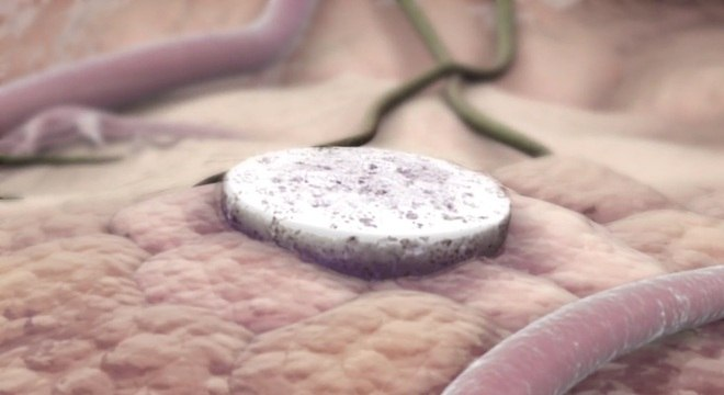 Esponja é inserida sob a pele em área onde paciente teve tumor removido