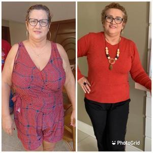 Sandra antes e depois de perder 22 quilos