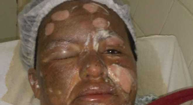 Queimadura parece ter sido provocada por fogo, segundo dermatologista
